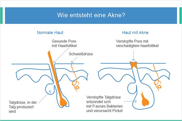 Wie entsteht Akne?